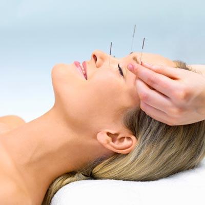 Akupunktur gegen Falten
